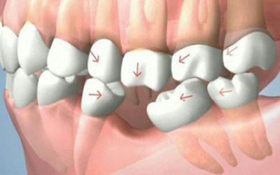Le conseguenze della perdita di un dente? Possono essere disastrose