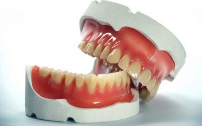 Protesi mobile totale (dentiera)
