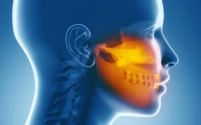 Mal di testa e dolori muscolari possono provenire dalla bocca: sai cos'è la gnatologia?